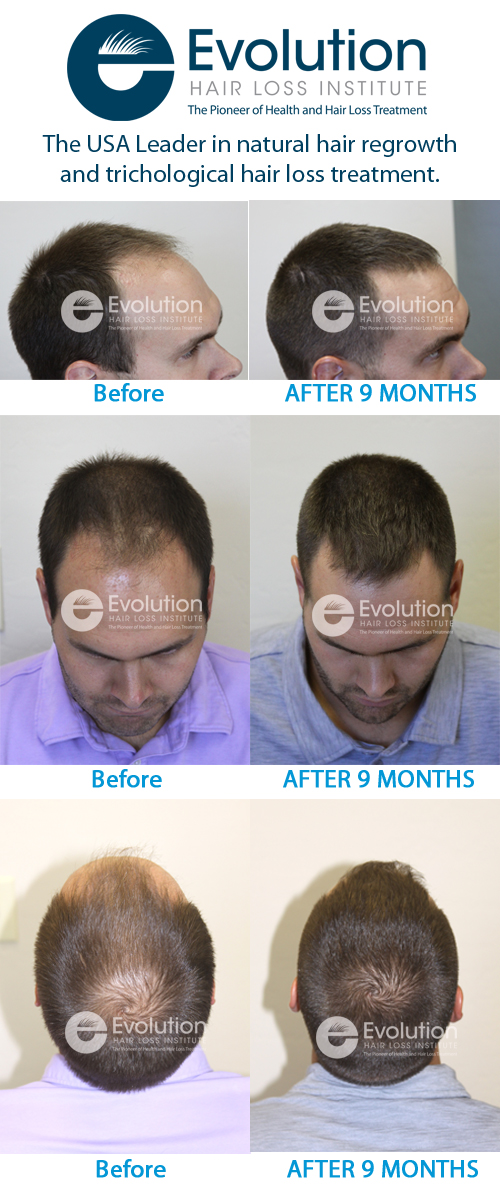 phoenix hair loss treatment before and after