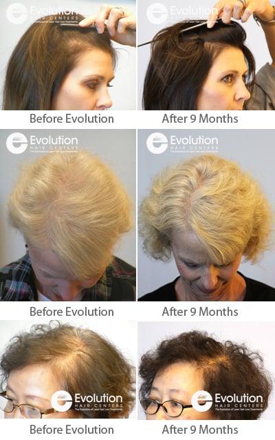 Phoenix Hair Restoration alternatives