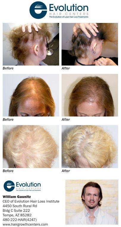 Hair Loss Treatment News Evolution Hair Loss Institute