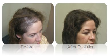 Womens Hair Loss Treatment