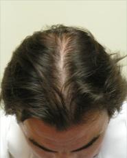 Hair Loss After Mens
