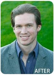 Will Gaunitz, Founder, after Evolution Hair Loss Treatment