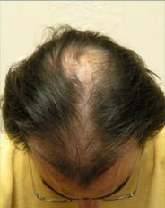 Hair Loss Before Mens