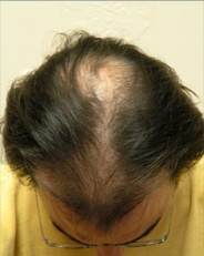 Hair Loss Before Mens