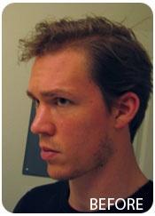 Will Gaunitz Before Evolution Hair Loss Treatment