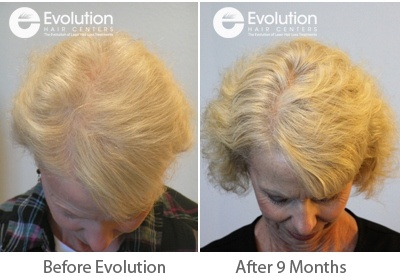 Womens Hair Loss Before and After Crown