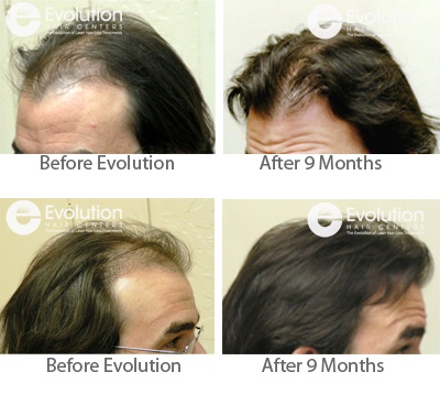 Mens Hair Loss Reversal Results after 9 months