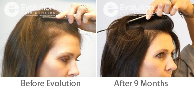 Before and After Hair Loss Photos Women