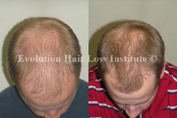 Before and After Photo Hair Loss Treatment Male Blond Young