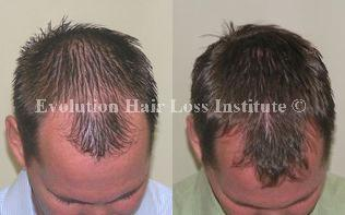 Before and After Photo Hair Loss Treatment Male Brown Middle Vertex