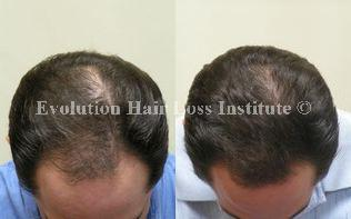 Before and After Photo Hair Loss Treatment Male Black Frontal Hair Regrowth