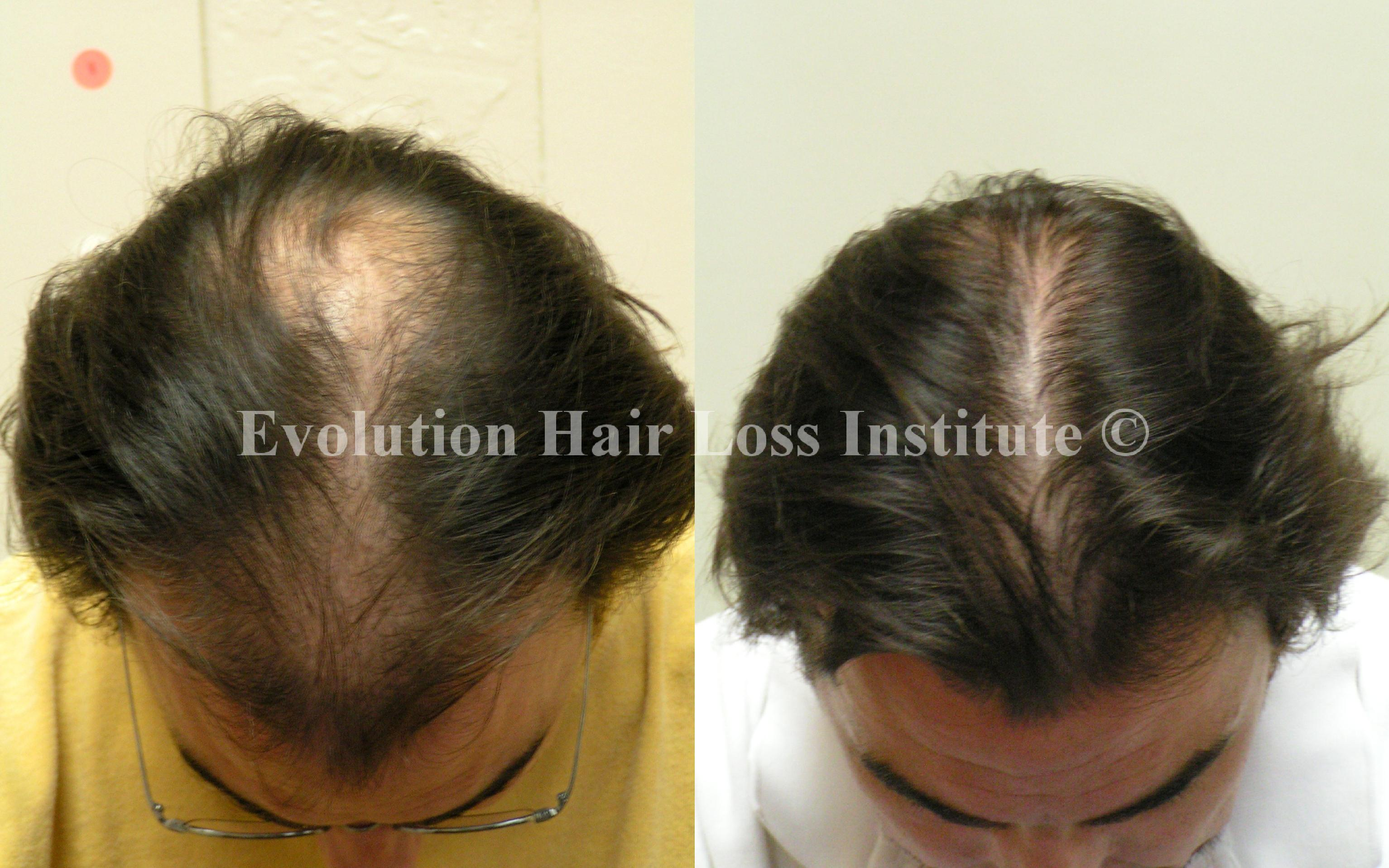 Before and After Hair Regrowth Male Long Dark Hair Large