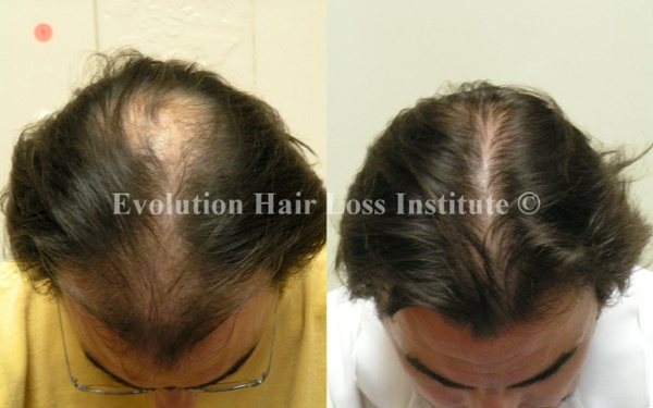 Before and After Photo Hair Regrowth Male Dark Long Hair