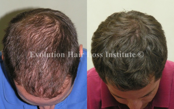 Before and After Photo Hair Regrowth Male Dark Short Hair