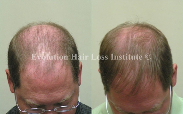 Before and After Photo Hair Regrowth Male Older Thin Hair