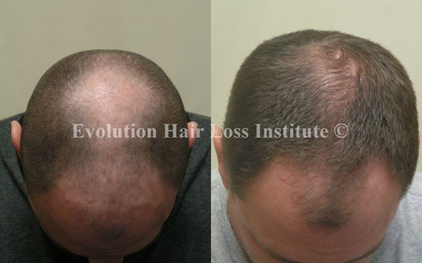 Before and After Photo Hair Loss Treatment Male Crown and Frontal