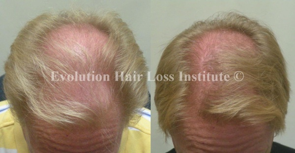 Before and After Photo Hair Loss Treatment Male Blond Crown Older