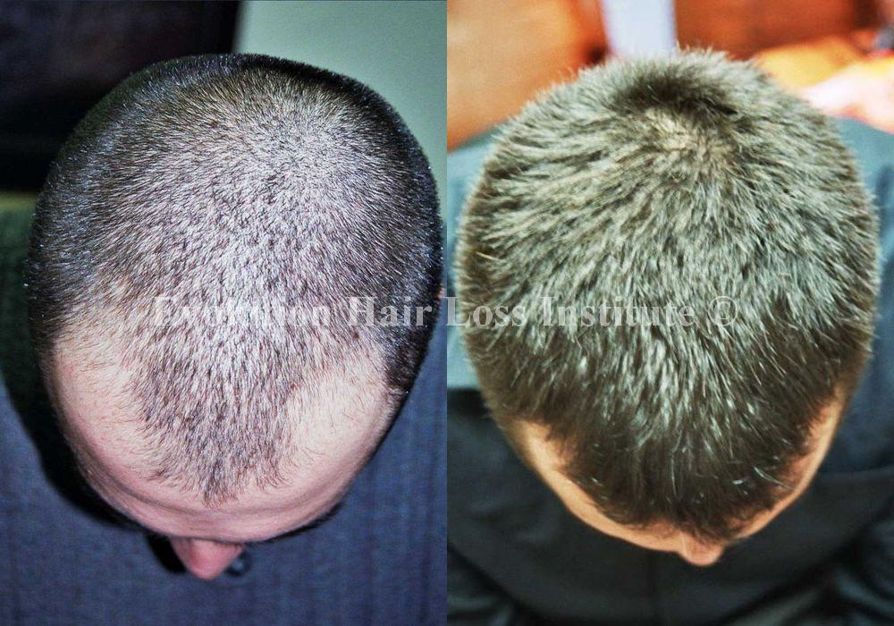 Before and After Hair Regrowth Male Short Dark Frontal Hair Loss Large
