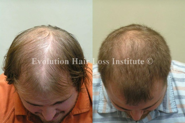 Before and After Photo Hair Regrowth Male Short Light Hair