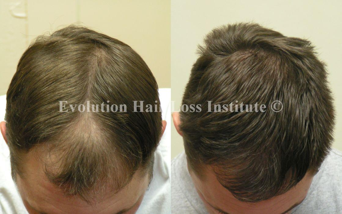 Before and After Hair Loss Treatment Male Brown Long Hair Large