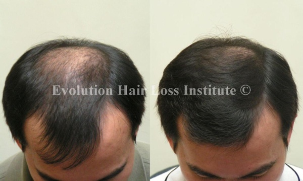 Before and After Photo Hair Loss Treatment Male Black Crown Regrowth