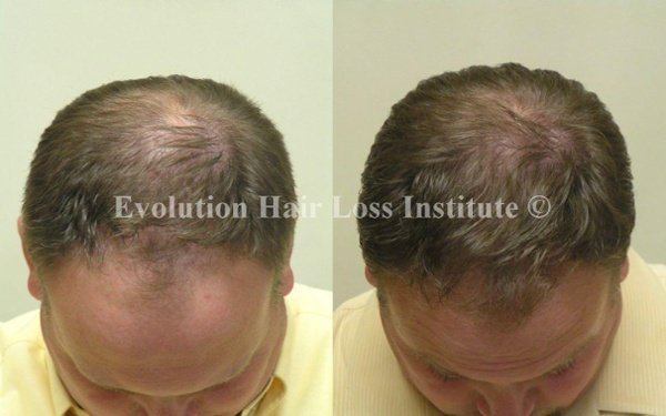 Before and After Photo Hair Loss Treatment Male Brown Frontal