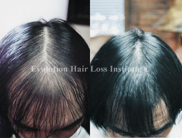 Before and After Photo Hair Regrowth Male Dark Hair Trasplant