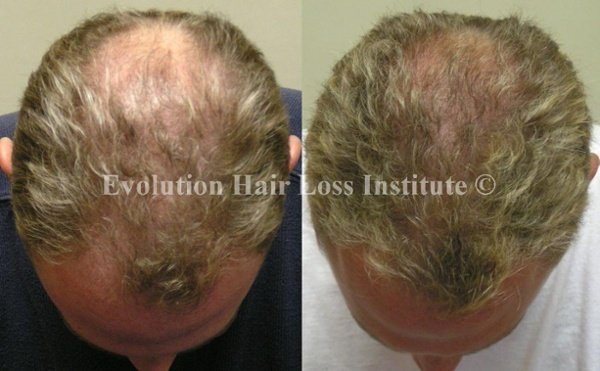 Before and After Photo Hair Loss Treatment Male Blond Middle Vertex