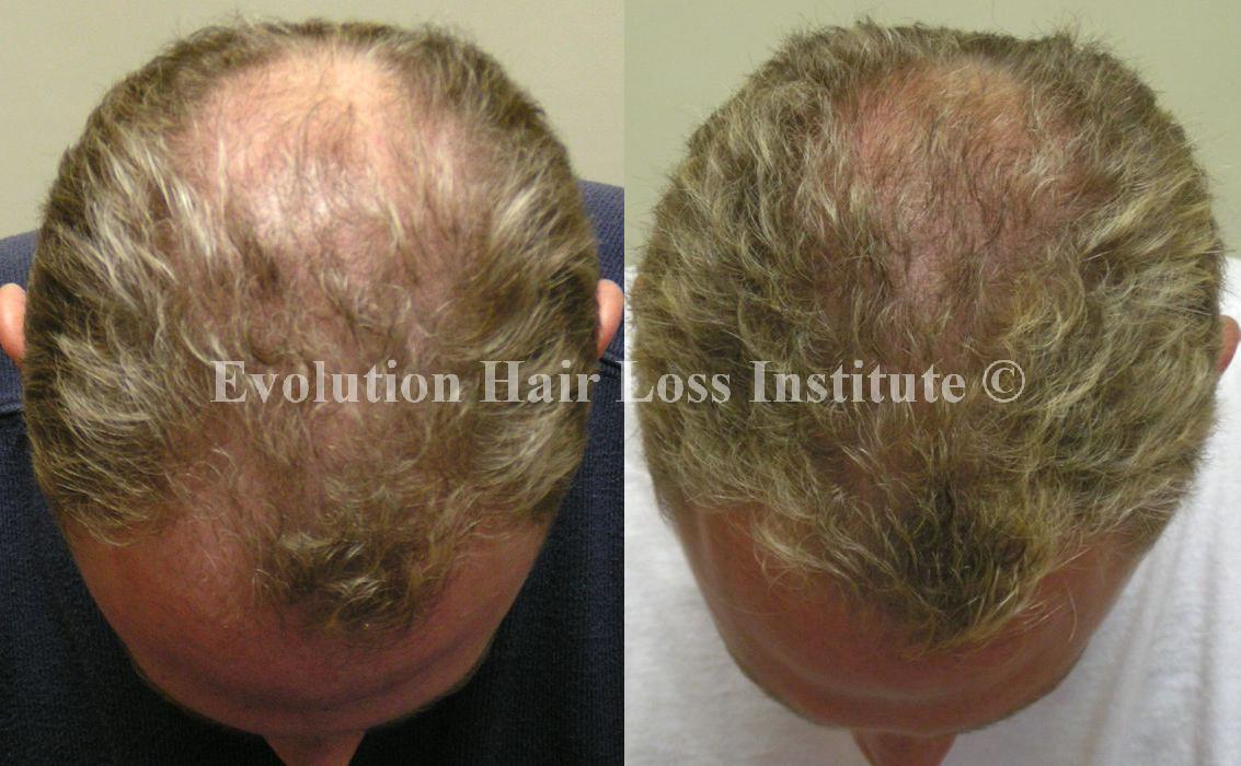 Before and After Hair Loss Treatment Male Blond Middle Vertex Large